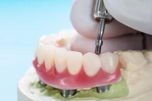 Ohne gaumenplatte oberkiefer Zahnprothese: Teilprothese,